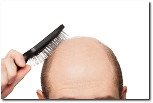 7 Stages of Balding
